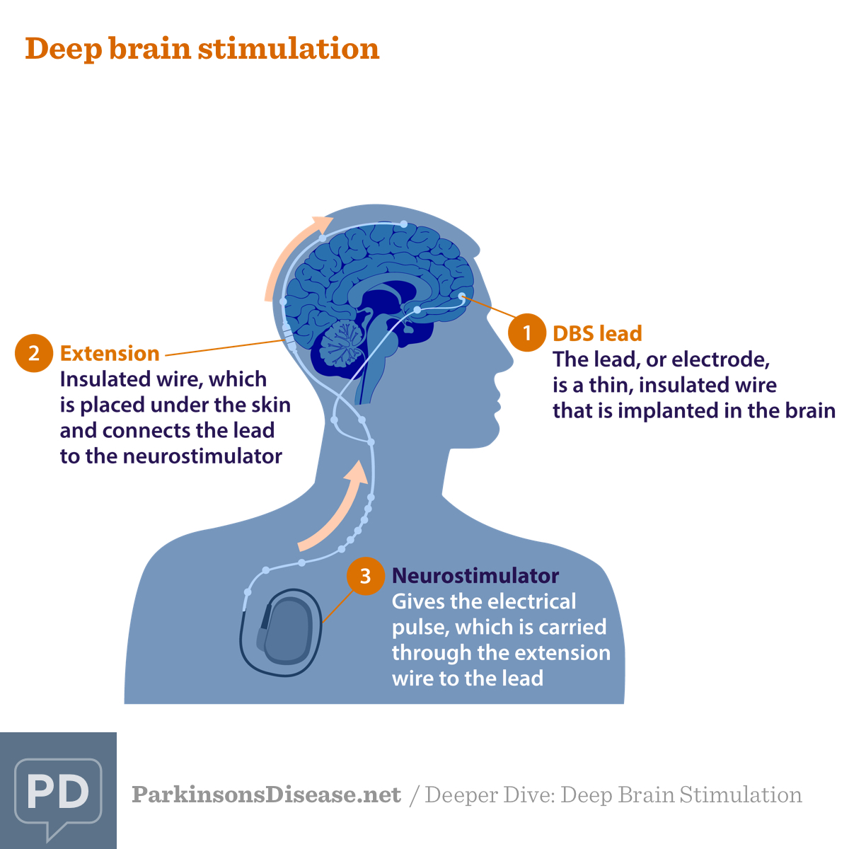 Components of deep brain stimulation, including the deep brain stimulation lead, extension, and neurostimulator
