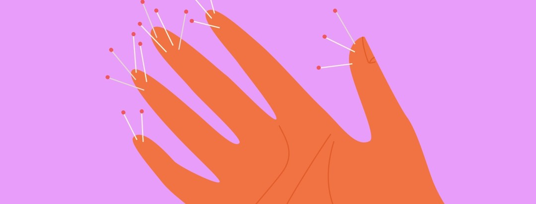 Hand with pins stuck in the finger tips representing pins and needles pain
