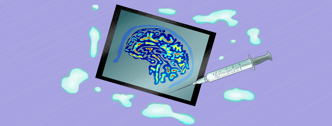 Brain scan and liquid injection with droplets surrounding them.